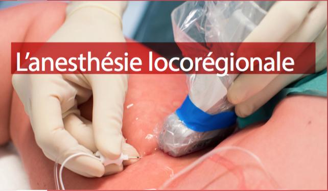 Chba Anesthesie Locoregionale